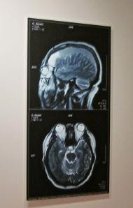 brain inflation ai wei wei